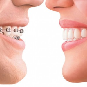 Invisalign or Braces? Invisalign is shown on the right