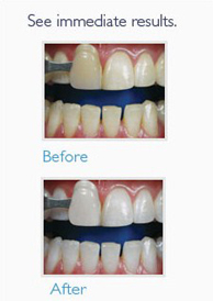 before and after teeth whitening Melbourne